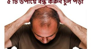 There are 5 ways to stop hair loss