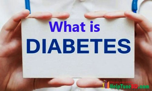 ডায়াবেটিস কাকে বলে, You Should Know Information about Diabetes